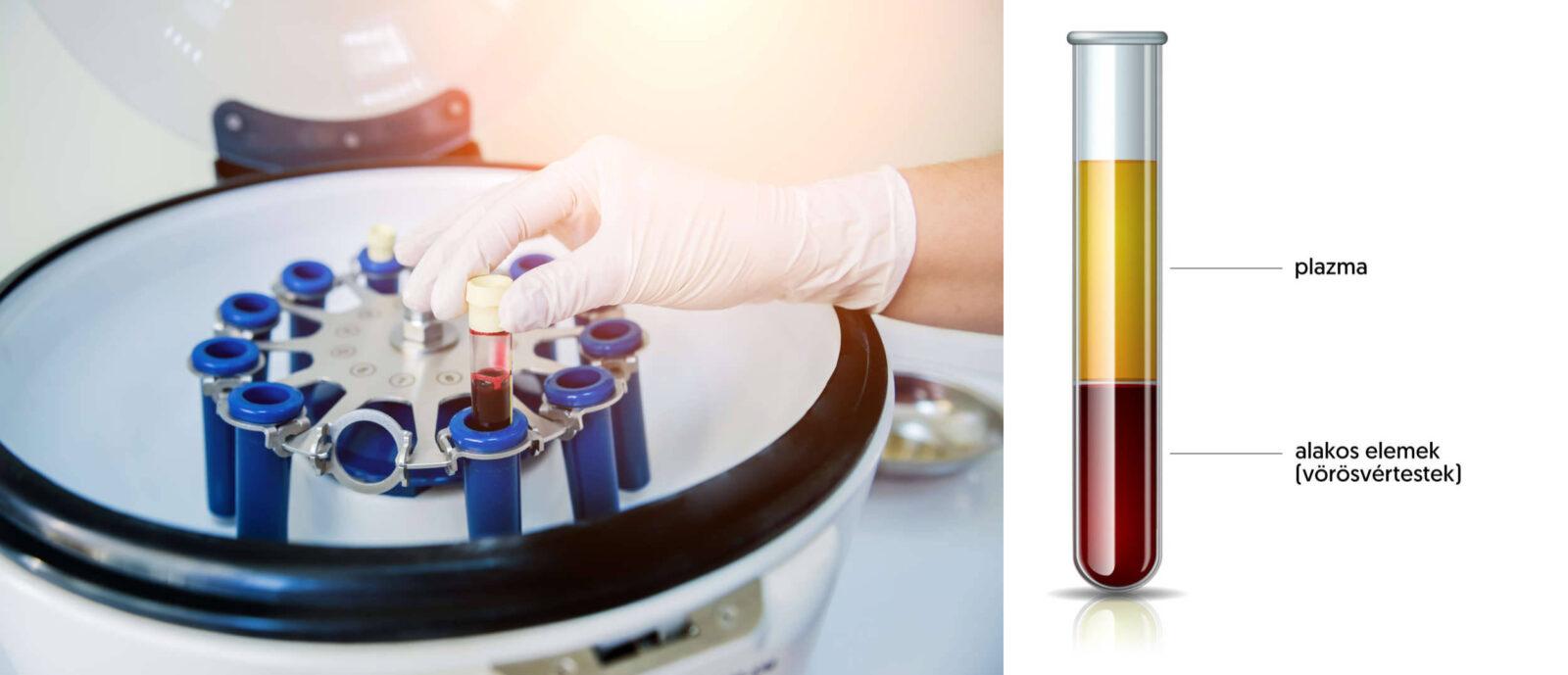 Hematokrit vizsgálata centrifugálás után