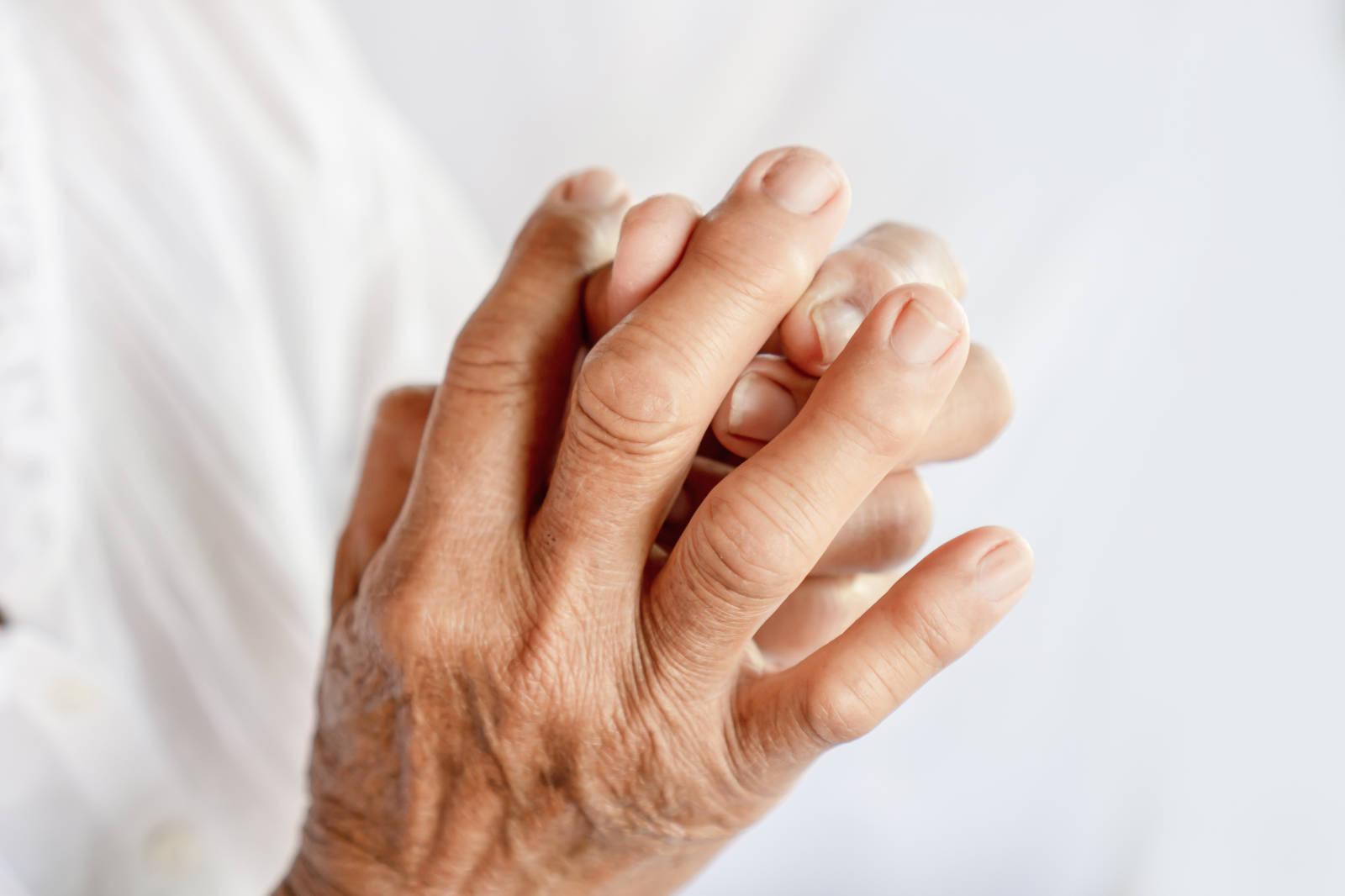 Kéz kisízületek degeneratív – kopásos – elváltozása