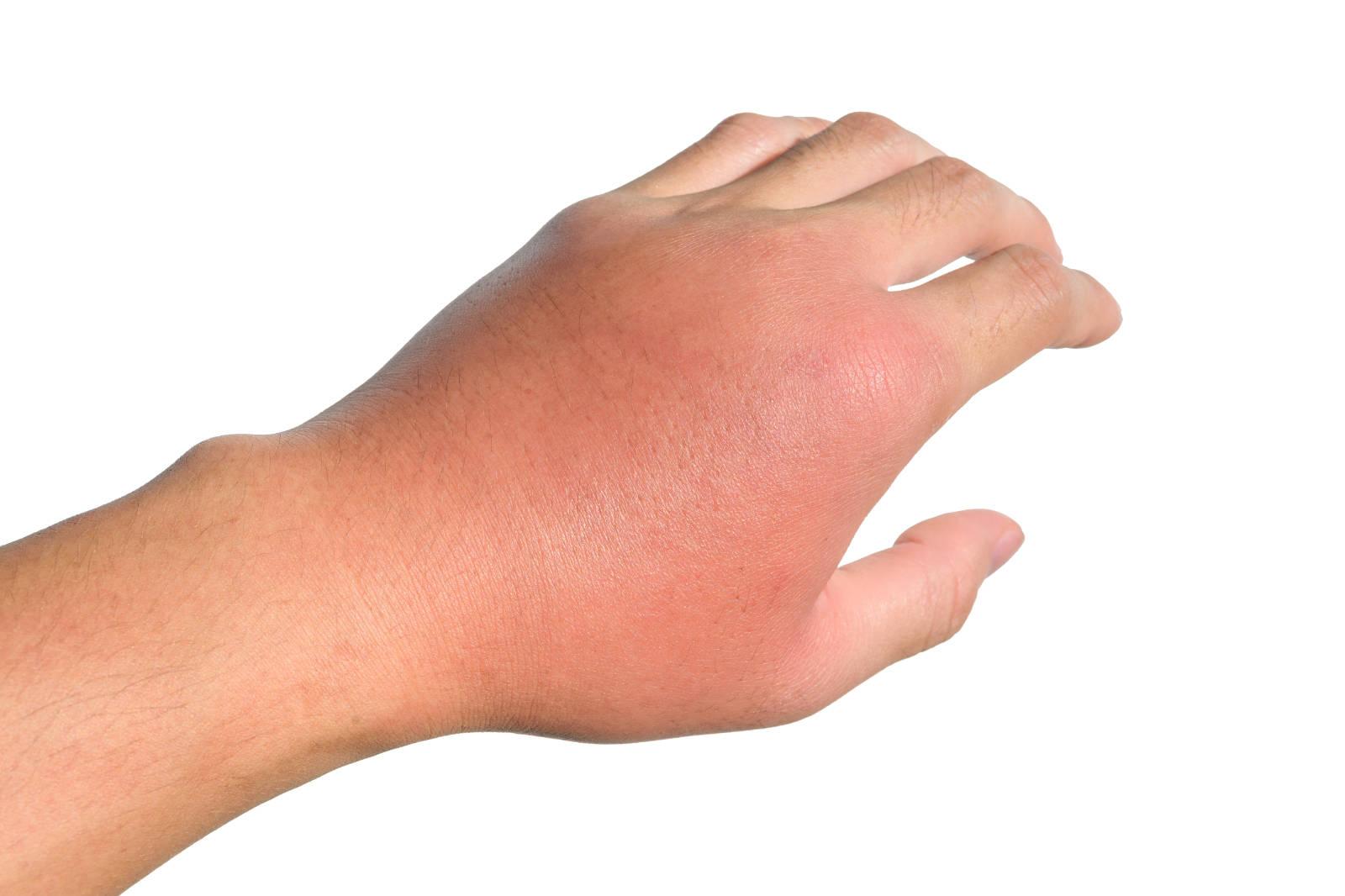 Ízületi gyulladáshoz társuló diffúz kézháti duzzanat, bőrpírral