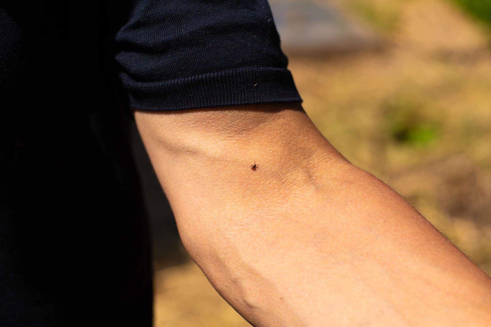 A kullancs sokszor rejtve marad a testhajlatokban