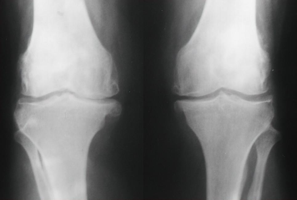 Térdízületi kopás röntgen képe